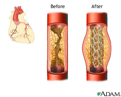 Coronary Artery Bypass Graft - by rachel earthman [Infographic]