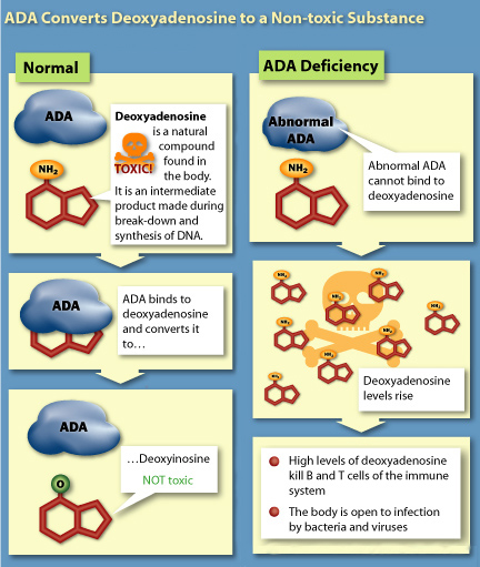 adenosine deaminase deficiency by shaheera khalid infographic