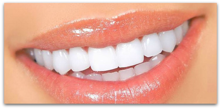 Factors Assume For Teeth Whitening! - by Emalley Wotte [Infographic]