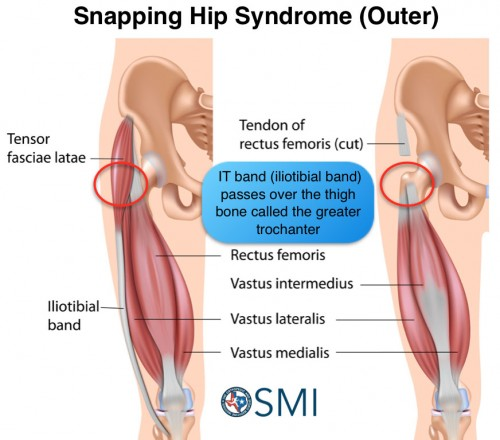 js snapping hip syndrome by jordan soohoo infographic