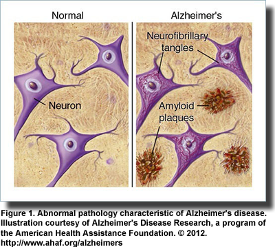 research papers for alzheimers disease Outline/topic requirements for term paper you must have your topic for your term paper approved by me by the date outlined in the syllabus alzheimer's disease.