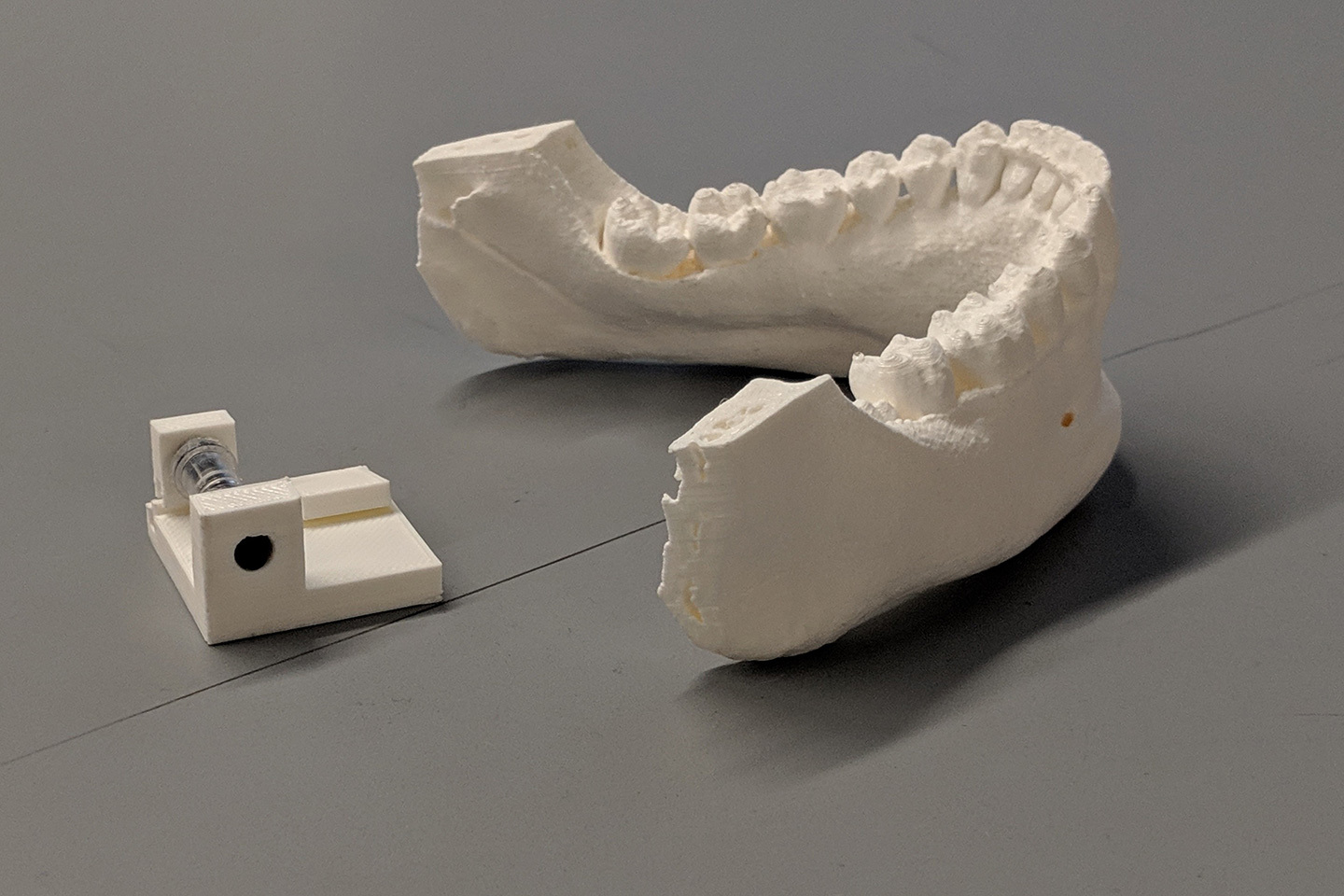 A prototype of a mouthguard to assist with treating epilepsy.