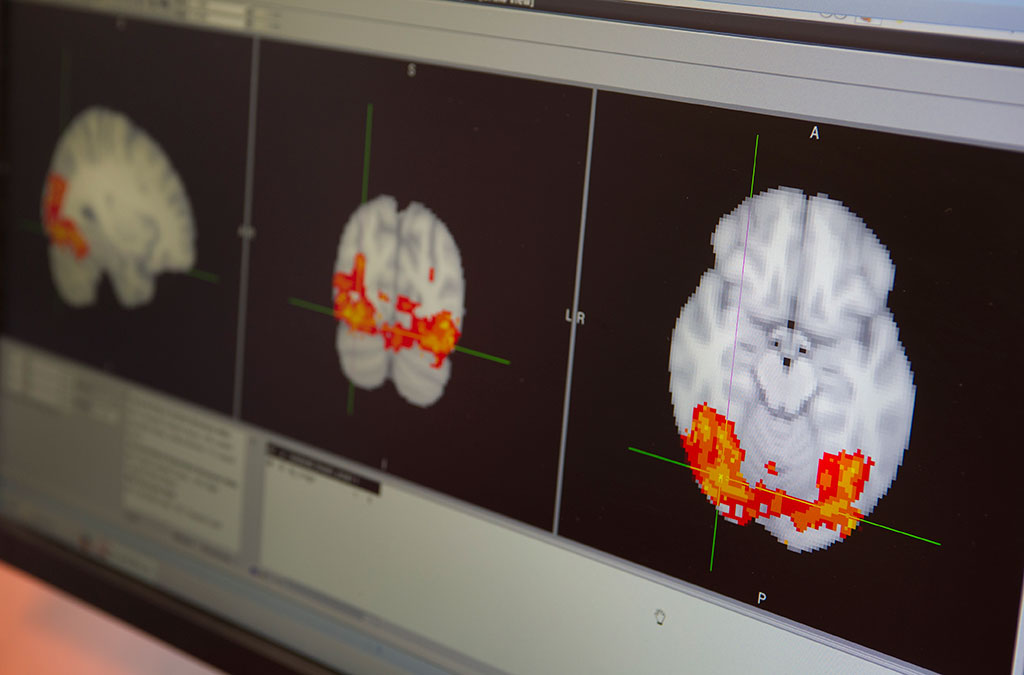 Food_Brain_Research_20141112_11