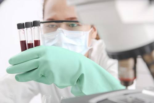 A professional analyzes three blood samples.