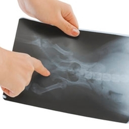 Digital x-rays or radiographs