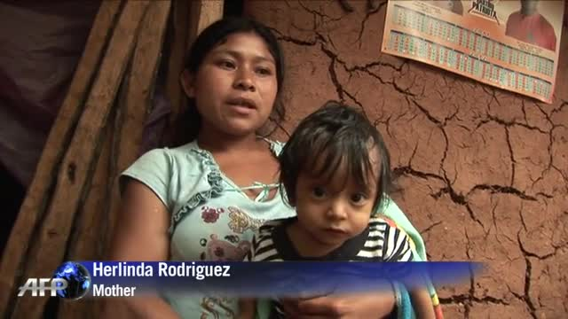 Guatemala's children endangered by malnutrition