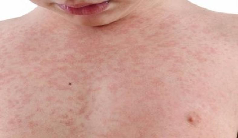 O alerta foi feito pela assessora regional de Imunizações da entidade