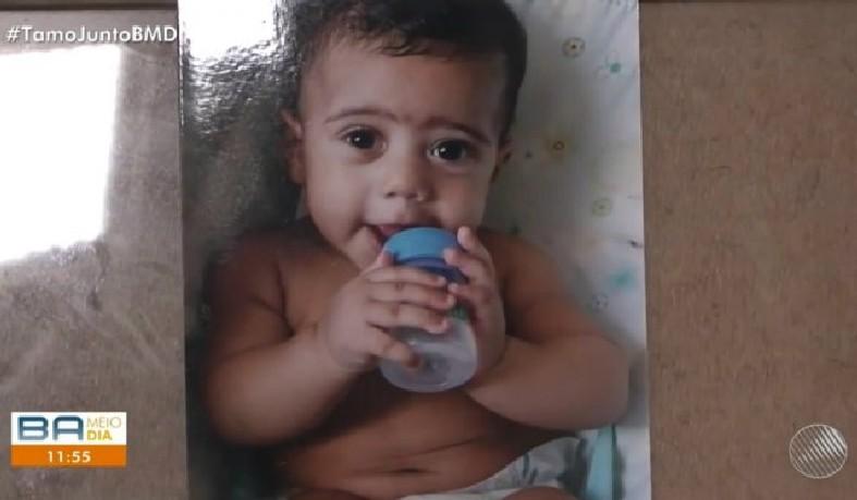 Criança não consegue enxergar, falar e tem dificuldades para comer.