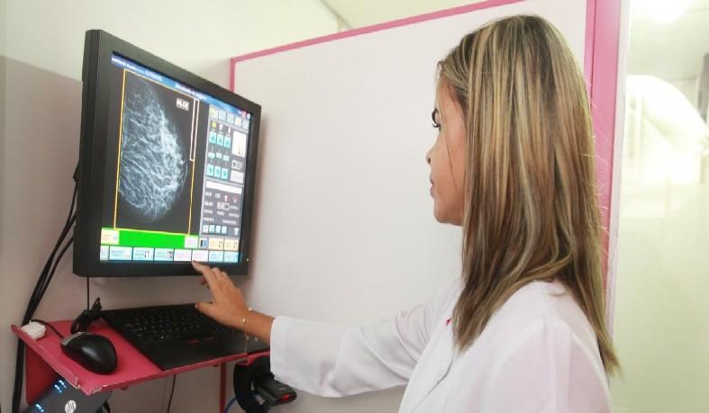 Mortalidade por câncer de mama no Brasil fica abaixo da média mundial