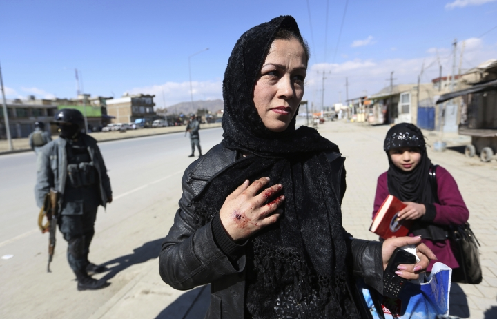 An injured Afghan woman police speaks with Media after a suicide attack in Kabul, Afghanistan, Wednesday, March 1, 2017. A pair of suicide bombings, both claimed by the Taliban, struck the Afghan capital, an Afghan official said. (AP Photo/Rahmat Gul)