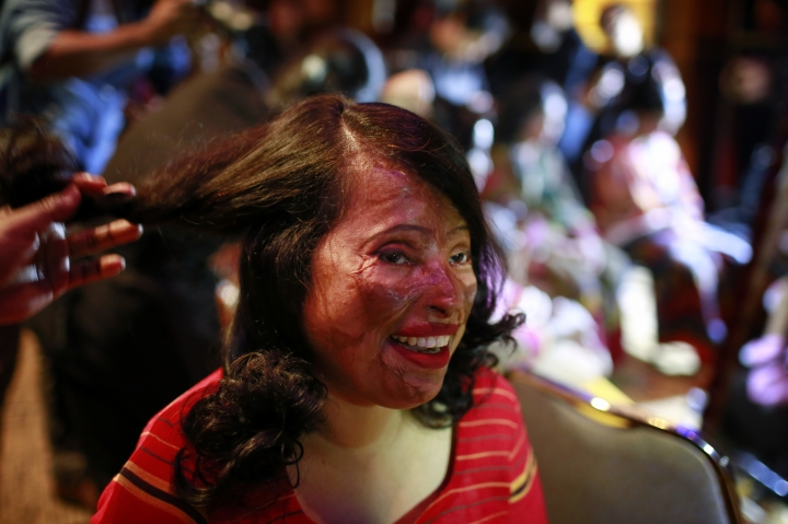 In this March 7, 2017 photo, a Bangladeshi acid attack survivor gets her make up applied during the event 'Beauty Redefined' in Dhaka, Bangladesh. Organizers said they hoped to highlight the fact that acid victims, too often overlooked, are a vital part of society. They deliberately chose to hold the event on the eve of International Women's Day. (AP Photo/A. M. Ahad)