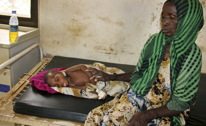 In this photo taken Saturday, March 25, 2017, malnourished Habiba Aden, 2, lies next to a relative, both of whom were displaced because of the drought, in a children's hospital in Baidoa, Somalia. Somalia's drought is threatening 3 million lives according to the U.N. and in recent months aid agencies have been scaling up their efforts but say more support is urgently needed to prevent the crisis from worsening. (AP Photo/Farah Abdi Warsameh)