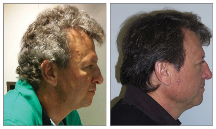 This undated combination of photos provided by the Journal of the American Medical Association in July 2017 shows a cancer patient with gray hair that unexpectedly turned dark while taking new immunotherapy drugs. Fourteen such cases were among 52 lung cancer patients being followed to see whether they developed bad side effects from the drugs - Keytruda, Opdivo and Tecentriq. (JAMA via AP)