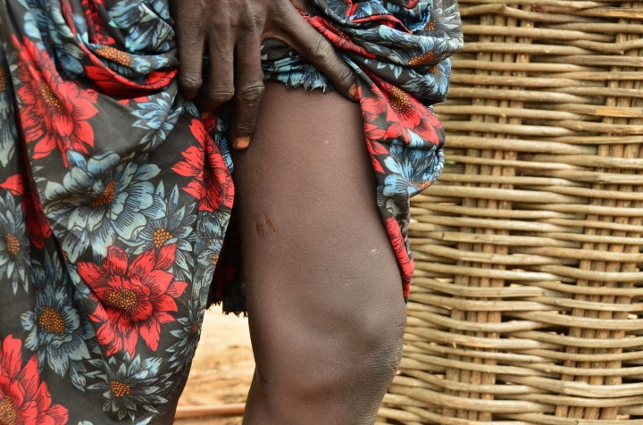 FILE - In this Wednesday Oct. 4, 2017, photo, a woman points to two scares on her leg where two worms emerged, in Terekeka, South Sudan. A new report says the world is moving closer to eradicating Guinea worm disease, in which a meter-long worm slowly emerges from a blister in a person's skin. (AP Photo/Mariah Quesada, File)