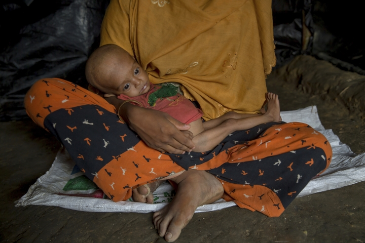 FILE - In this Friday, Oct. 20, 2017, file photo, Noor Aysha, a pregnant Rohingya Muslim woman who crossed over from Myanmar into Bangladesh, holds her 10-month-old son Anamul Hassan, inside her shelter in the Thaingkhali refugee camp, Bangladesh. (AP Photo/Dar Yasin)