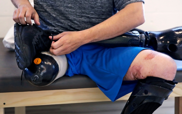 In this March 20, 2018, photo, with scars visible from the explosion and past surgeries, Boston Marathon bombing survivor Marc Fucarile ties his athletic shoe onto a prosthetic foot during a fitting at the Medical Center Orthotics and Prosthetics in the Allston neighborhood of Boston. Fucarile lost his right leg in the blast, and his badly maimed left leg causes him unceasing pain. (AP Photo/Charles Krupa)