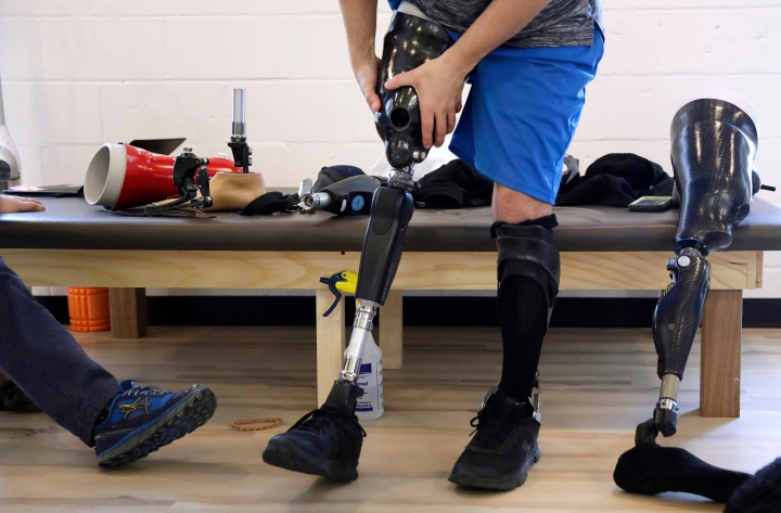 In this March 20, 2018, photo, Boston Marathon bombing survivor Marc Fucarile holds his thigh socket as he tests a variety of microprocessor-controlled prosthetic knees, during a visit to the Medical Center Orthotics and Prosthetics in the Allston neighborhood of Boston. In the five years since the Boston Marathon bombing, medical science has made promising advances in amputations and artificial limbs. (AP Photo/Charles Krupa)
