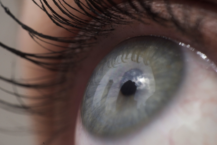 This Thursday, April 12, 2018 photo shows the eye of a woman in New York. According to a study released on Friday, April 12, 2018, fish oil supplements failed to help people with dry eye when put to a scientific test. (AP Photo/Patrick Sison)