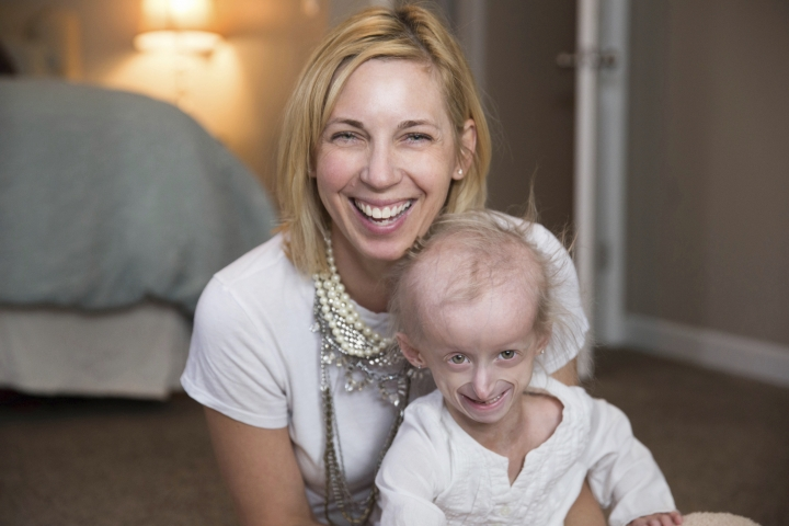 """CORRECTS LOCATION TO WHITEHOUSE, NOT SWANTON - This March 2017 photo provided by Heidi Bisbee shows Carly Kudzia, 7, with her mother, Heather Unsinger, in Whitehouse, Ohio. Carly participated in a study suggesting that the drug lonafarnib may extend life for children with progeria, a rare, incurable disease that causes rapid aging. Other kids """"always think I'm a baby,"""" Carly says. But """"I'm a regular kid."""" (Heidi Bisbee via AP)"""