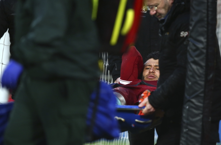 Liverpool's Alex Oxlade-Chamberlain is carried on a stretcher after getting injured during the Champions League semifinal, first leg, soccer match between Liverpool and AS Roma at Anfield Stadium, Liverpool, England, Tuesday, April 24, 2018. (AP Photo/Dave Thompson)