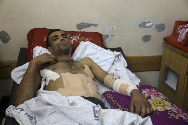 Marwan Shtewi, 32, lies on the bed at the surgery's ward of Shifa hospital in Gaza City, Wednesday, May 16, 2018. Shtewi was shot in his hand and abdomen by Israeli troops during a protest east of Gaza City on Monday. With few prospects and little to fear, Shtewi is among the crowds of young men who put themselves on the front lines of violent protests along the border with Israel, risking their lives in a weekly showdown meant to draw attention to the dire conditions of Gaza. (AP Photo/Adel Hana)