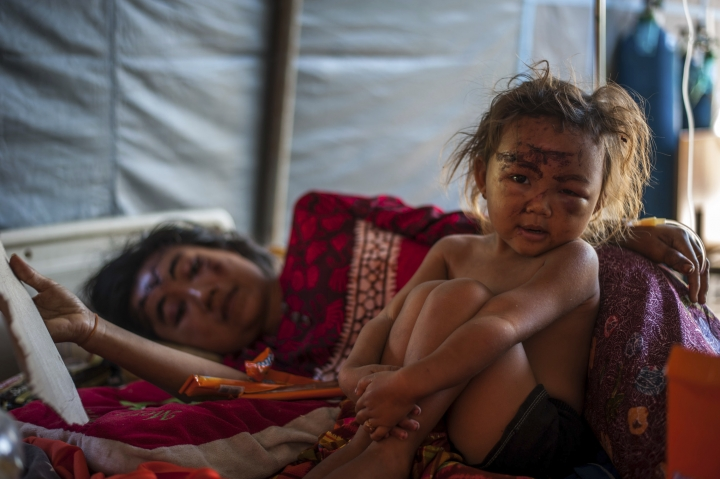 In this photo taken on Wednesday, Aug. 8, 2018, a woung girl and her mother who were injured in Sunday's earthquake rest on a bed at a makeshift hospital in Kayangan, North Lombok, Indonesia. Four days after the quake killed a large number of people of people and displaced hundreds of thousands more, injured survivors cut off by landslides, broken bridges and vast distances are still emerging from the countryside, struggling to reach the help they desperately need. (AP Photo/Fauzy Chaniago)