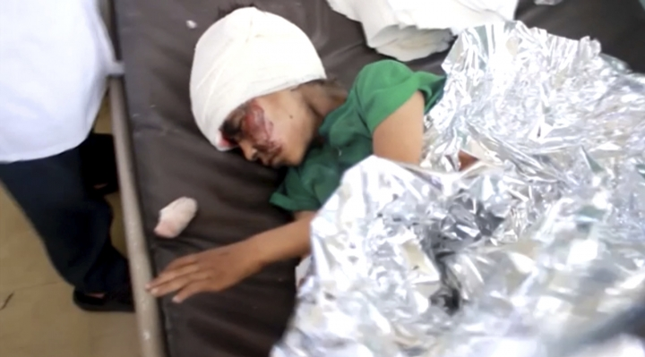 This image made from video taken on Thursday, Aug. 9, 2018, shows a child injured in an airstrike resting at a hospital in Saada, Yemen. Yemen's Shiite rebels are backing a United Nations' call for an investigation into a Saudi-led coalition airstrike in the country's north that killed dozens of people the previous day, including many children. (AP Video via AP)