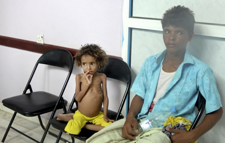 In this Aug. 25, 2018 image made from video, a severely malnourished girl waits for her turn to be treated at the Aslam Health Center in Hajjah, Yemen. Around 2.9 million women and children are acutely malnourished; another 400,000 children are fighting for their lives only a step away from starvation. Yemen's civil war has wrecked the impoverished country's already fragile ability to feed its population. (AP Photo/Hammadi Issa)