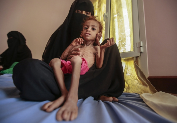 FILE - In this Oct. 1, 2018, photo, a woman holds a malnourished boy at the Aslam Health Center, in Hajjah, Yemen. The U.N. Office for the Coordination of Humanitarian Affairs, or OCHAU.N. warned in a report Tuesday, March 12, 2019, that thousands of Yemeni civilians caught in fierce clashes between warring factions are trapped in the embattled northern district of Hajjah. The number of displaced in the district has doubled over the past six months, the humanitarian agency said. (AP Photos Hani Mohammed, File)