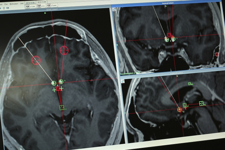 This Monday, Oct. 29, 2018, photo shows a brain scan of a methamphetamine user with the path of electrodes that doctors at Ruijin Hospital in Shanghai, China implanted to stimulate an area of the brain associated with addiction. Western attempts to push forward with human trials of deep brain stimulation for drug addiction have foundered, even as China has emerged as a hub for this kind of research. But the vast suffering wrought by the U.S. opioid epidemic may be changing the risk-reward calculus. Now, the experimental surgery for addiction is coming to America. (AP Photo/Erika Kinetz)
