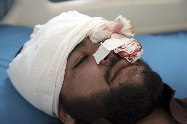 A wounded man receives treatment in a hospital after a bomb explosion during Friday prayer on the outskirts of Kabul, Afghanistan, Friday, May 24, 2019. According to Kabul police chief's spokesman, Basir Mujahid, the bomb was concealed in the microphone used to deliver the sermon. The prayer leader, Maulvi Samiullah Rayan, was the intended target, the spokesman added. (AP Photo/Rahmat Gul)