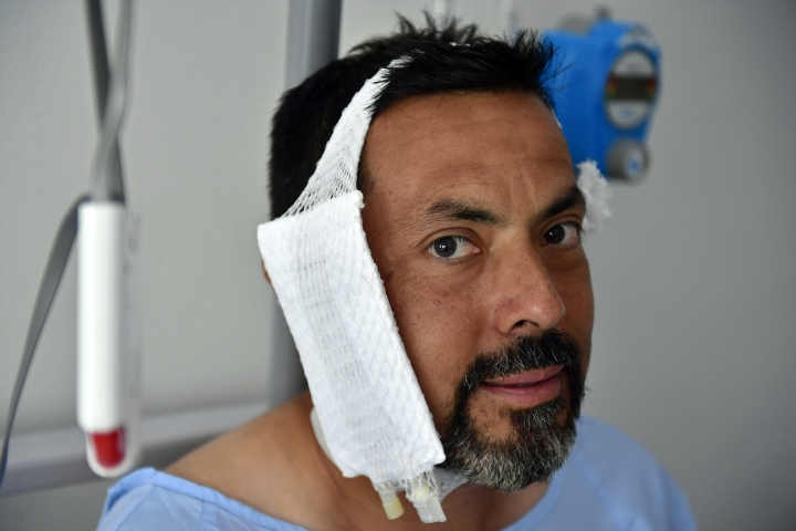 "REMOVES WEIGHT OF BULL - Jaime Alvarez from Santa Clara County, California, sits in a hospital in Pamplona, northern Spain, Monday, July 8, 2019 after being gored by a bull Sunday at the San Fermin Festival. Alvarez, a 46-year-old who works as a public defender in Santa Clara County, California, says that being ran over and gored in the neck by a bull is something he will never forget. ""The joy and the excitement of being in the bullring quickly turned into scare, into real fear for my life,"" the San Francisco resident told The Associated Press on Monday at the regional hospital where he recovered a day after undergoing an urgent 2-hour-long surgery. (AP Photo/Alvaro Barrientos)"