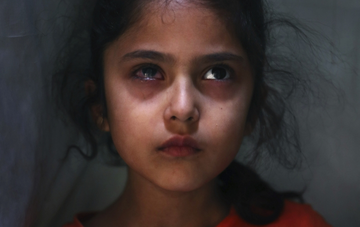 In this Tuesday, Sept. 17, 2019, photo, 6-year-old Muneefa Nazir, a Kashmiri girl whose right eye was hit by a marble ball shot allegedly by Indian Paramilitary soldiers on Aug. 12, stands outside her home in Srinagar, Indian controlled Kashmir. As the disputed Himalayan region continues to reel under this unprecedented lockdown, the children of the region have been the most affected. As the crisis has upended education of millions in the region, many students in India-controlled Kashmir also find themselves caught up in the street violence. (AP Photo/Mukhtar Khan)
