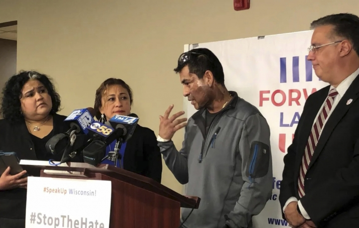 Mahud Villalaz, 42, of Milwaukee gestures to the second-degree burns on his face Saturday November 2, 2019 at a news conference one day after a man threw acid at him outside a restaurant on Milwaukee's south side. He is joined by, from left, state Rep. JoCasta Zamarripa, his sister, and Forward Latino leader Darryl Morin. (Sophie Carson/Milwaukee Journal-Sentinel via AP)