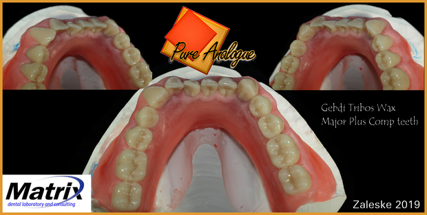 LMTmag | Dentures