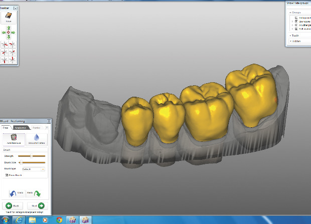 LMTmag   How to Create Monolithic Crowns Using an All-Digital Workflow