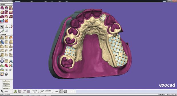 LMTmag | exocad Partial Denture Framework Software