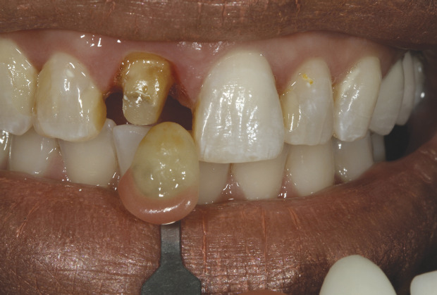 Lmtmag How To Custom Shade Match A Single Anterior Tooth