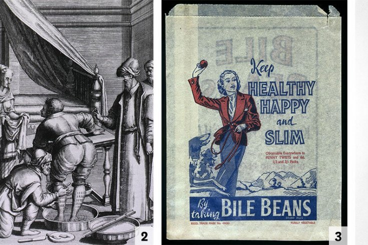 Images courtesy of Science Museum/Wellcome Images, with the exception of No. 2 (National Library of Medicine)
