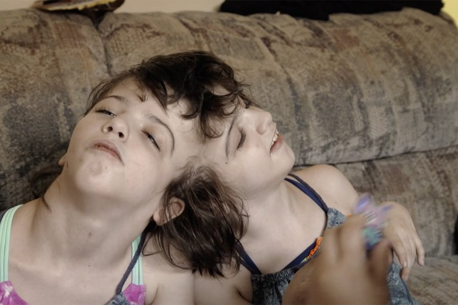How Conjoined Twins Are Making Scientists Question the Concept of Self