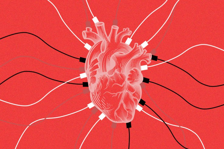 An illustration of a heart with cables attached to it.