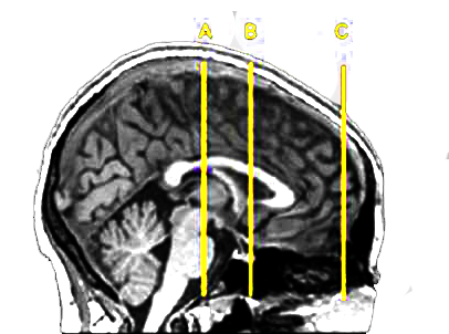 "A snapshot of the human brain highlights the areas associated with rewards, fears, and decision-making.  Area B, highlighted in yellow, shows the brain's ""reward center,"" which can push us to take risks. (Photo courtesy of Camelia Kuhnen)"