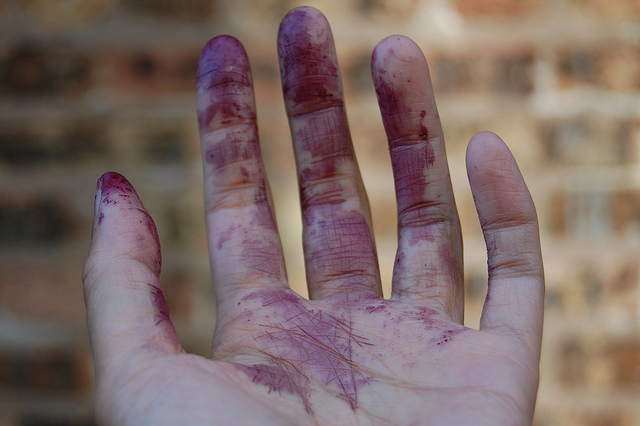Mulberry stained hand (WBEZ/Louisa Chu)
