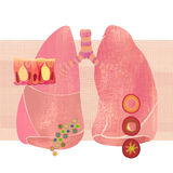 Bronchitis (book cover artwork)