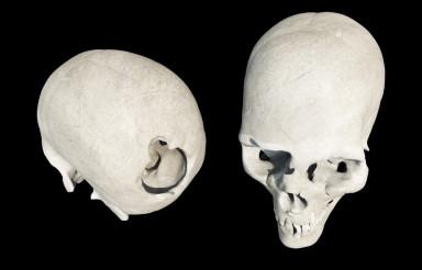 Damaged Skull Isolated on Black