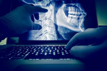 Doctor Examining X Ray