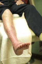 Leg Wounds