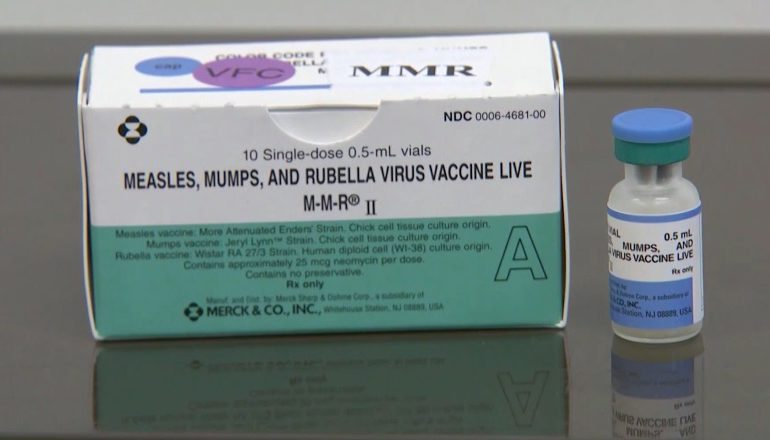 Mumps Outbreak Impacts Students