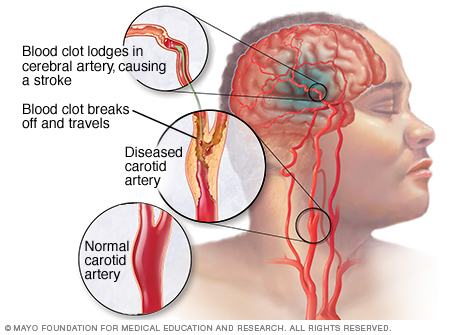 10 common stroke symptoms and how to save your loved ones