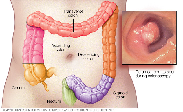 Why colon and rectal cancer are rising in young people